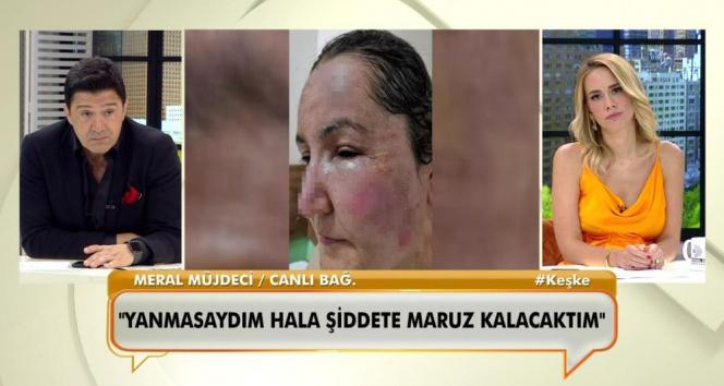 Canlı yayında bağlanan kadın, eşinin kendisini kızgın yağ ile yaktığını söyledi
