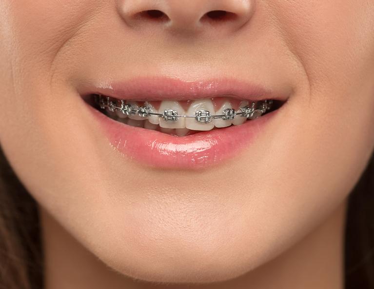 Diş teli fiyatları nelerdir