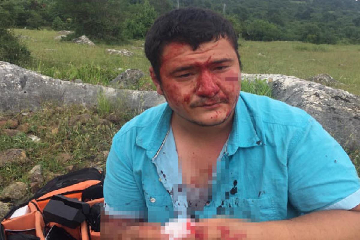 İHA muhabiri Uslu'ya yapılan saldırıya kınamalar artıyor