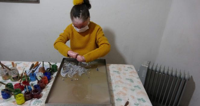 Kelebek hastası genç kız ebru sanatıyla kendine hayran bırakıyor