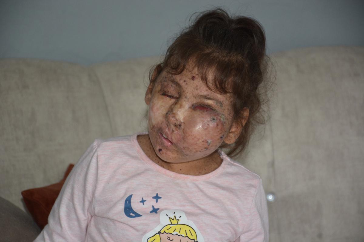 Mikrosefali hastası Sahra kendisini ameliyat edecek doktor bulamıyor