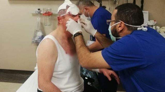 Selçuk Özdağ'a yapılan silahlı ve sopalı saldırının yeni görüntüleri çıktı