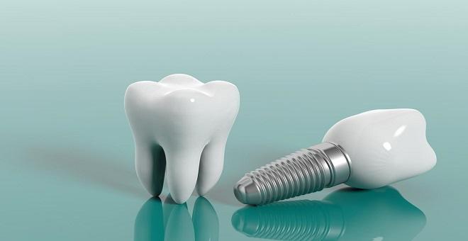 Diş İmplant Hangi Durumlarda Yapılır?
