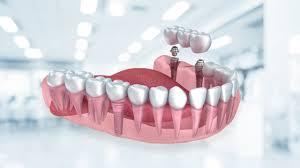 Diş Tedavileri