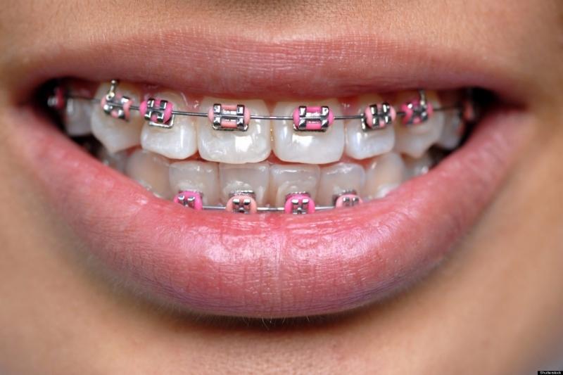 Konya Diş Teli Tedavisi
